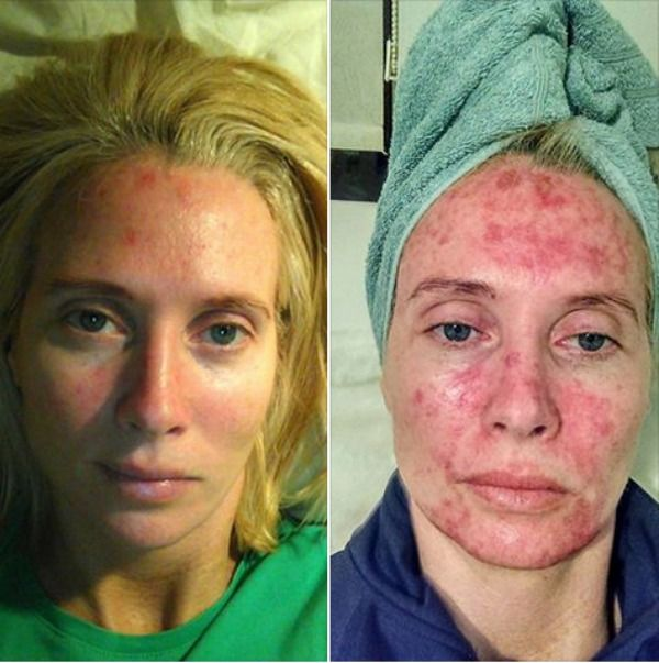 Mother Shares Daily Pics Of Her Skin Cancer Treatment To Warn Against Tanning