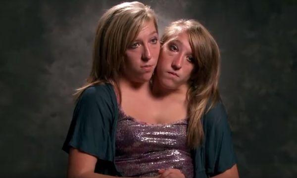 The Hensel Twins Are Teachers - Neatorama