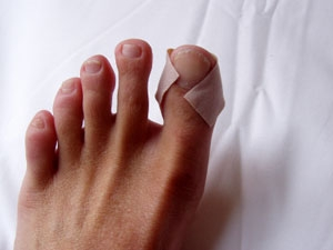 stubbed toe