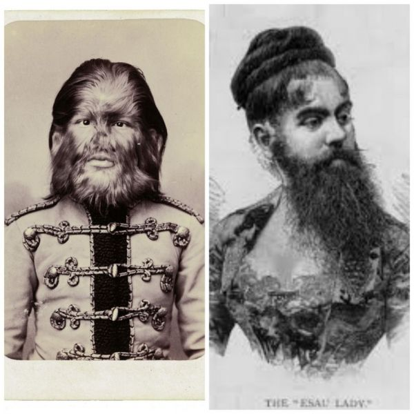 True Tales Of The Bearded Lady And The Dog-Faced Boy
