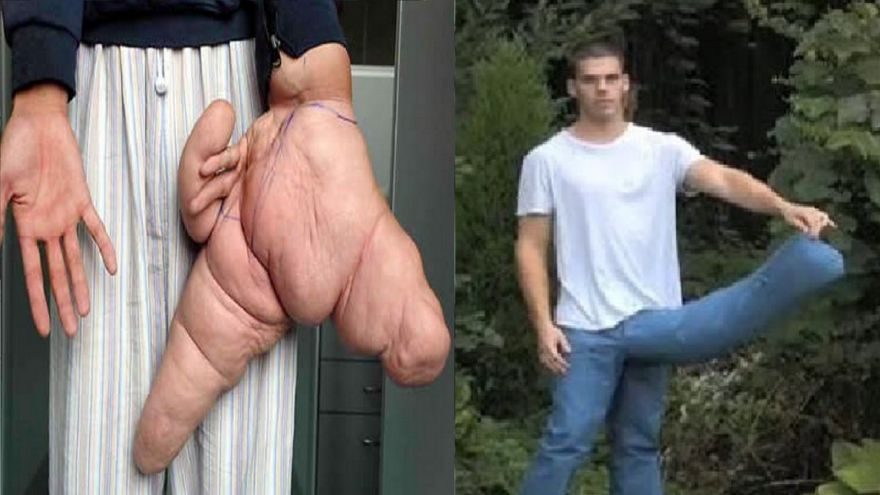 Top 10 Amazing World's Biggest Human Body Parts : Trends