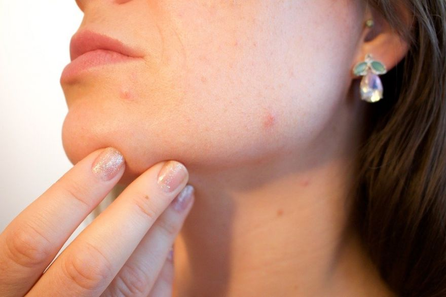 Protein That Could Be Key To Acne Therapies In The Future