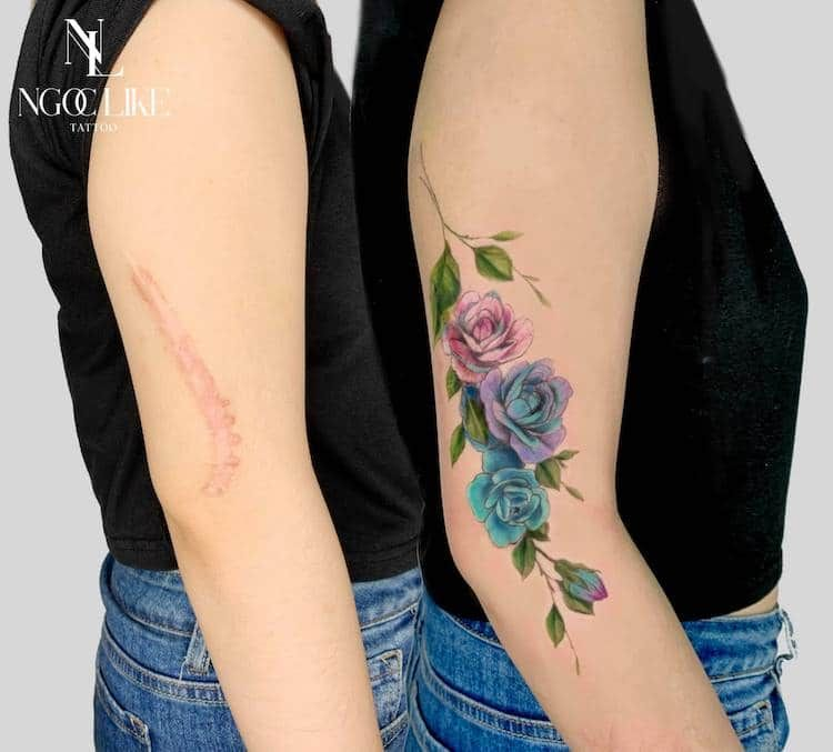 Tattoo Artist Helps People Regain Confidence By Covering Scars With Beautiful Tattoos