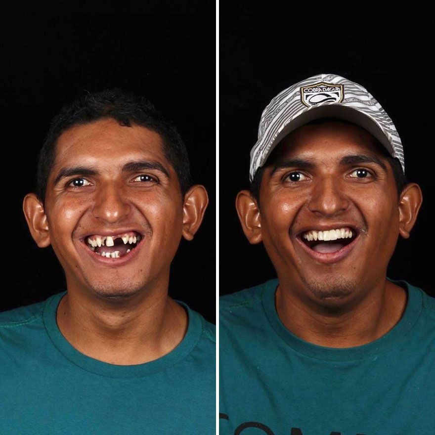 Brazilian Dentist Fixes Teeth of Less-Fortunate People For Free, And Their Smiles Are Priceless!
